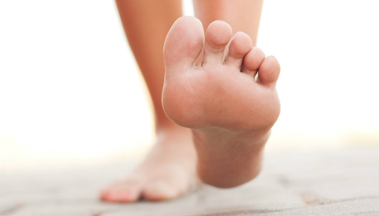 Do You Have Duck Feet? Why You Need to Address the Problem
